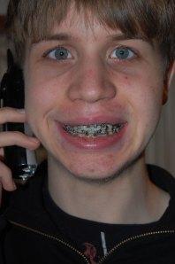 braces-day-1